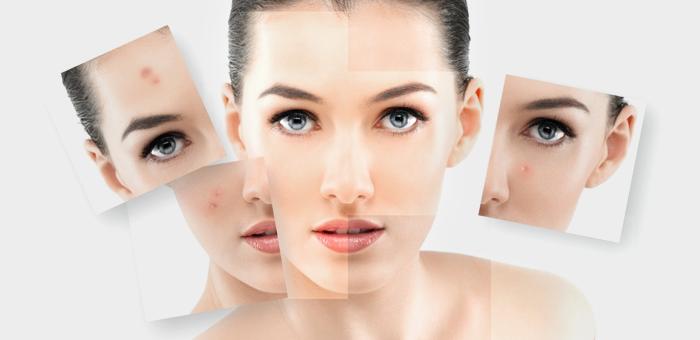 Giluminis veido odos valymas