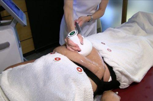Šiuolaikinės celiulito gydymo ir riebalų skaidymo technologijos